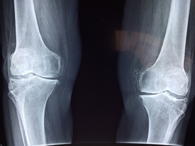 Getting SSD Benefits with Degenerative Joint Disease
