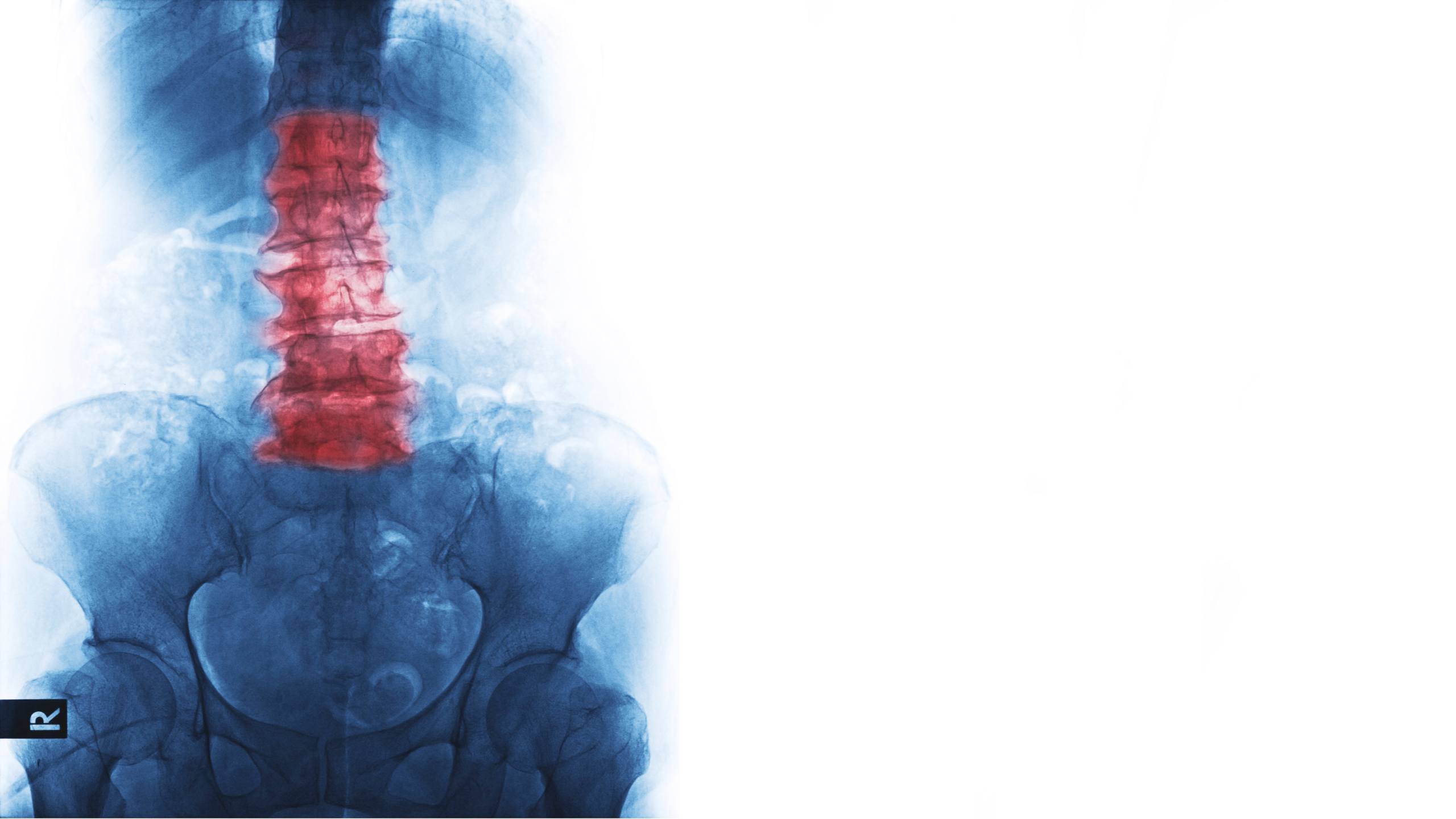 SSD Benefits and Ankylosing Spondylitis